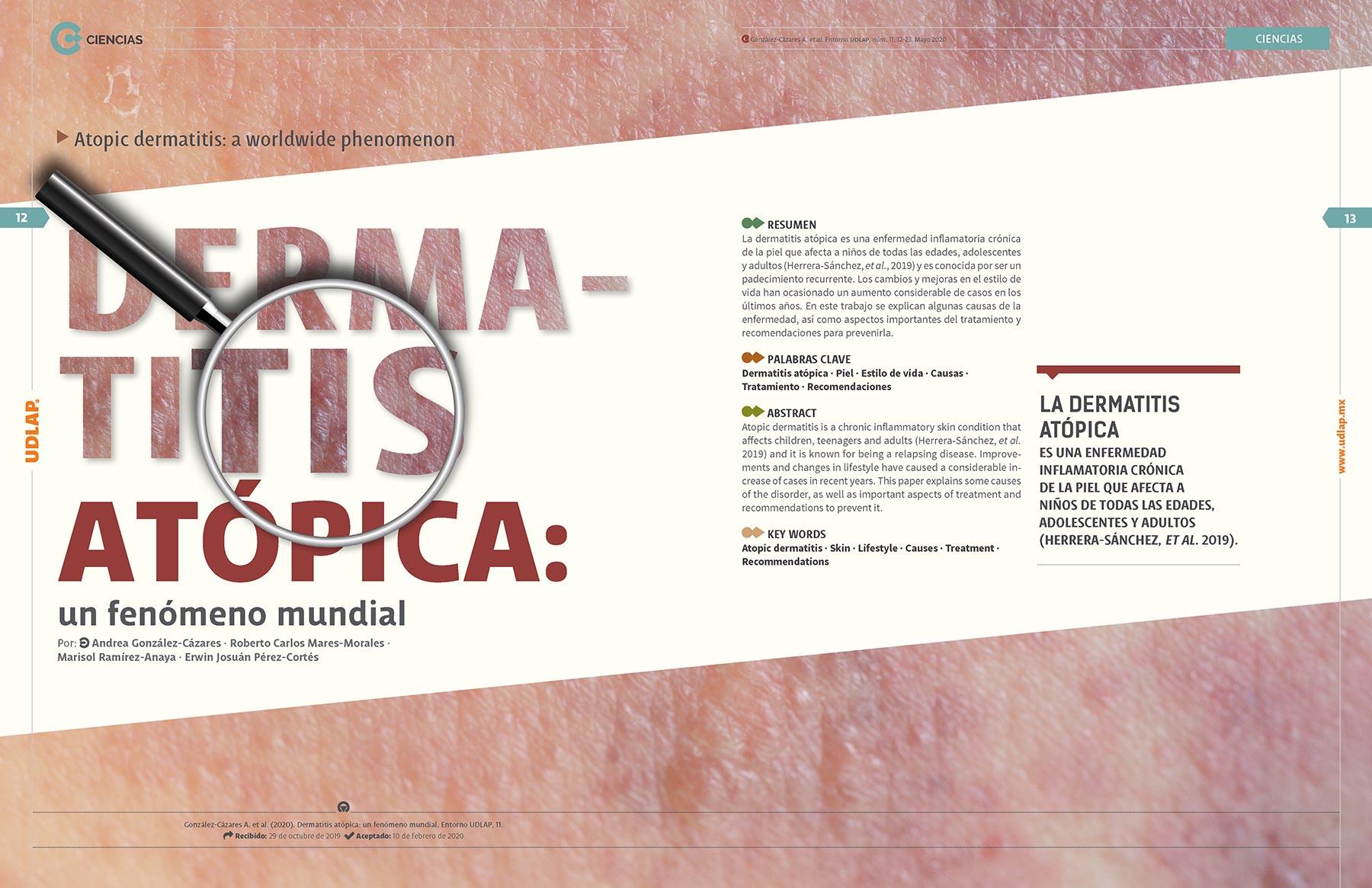 la-dermatitis-atopica-UDLAP
